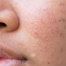 Seborax leviga la grana della pelle riducendo i pori