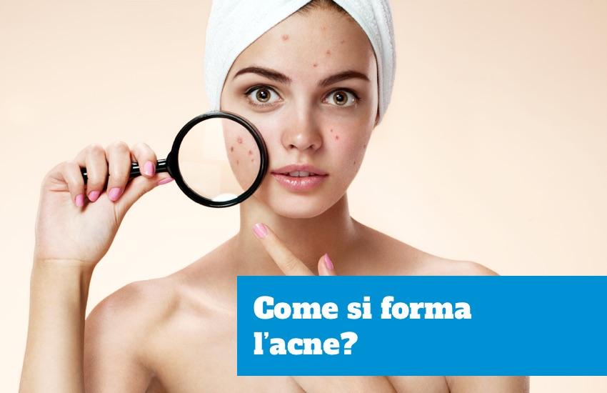 Come si forma l'acne