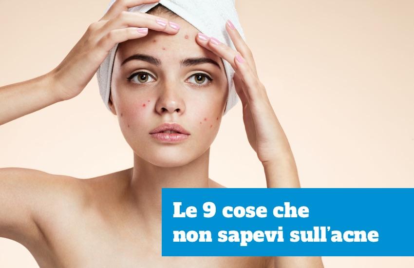 Cose che non sapevi sull'acne